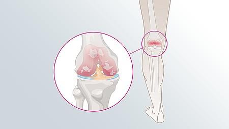 Artrosis de la rodilla