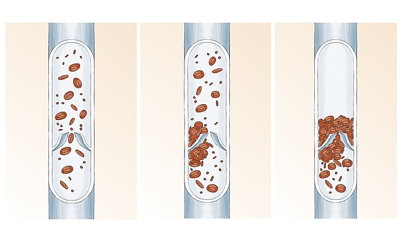 El sistema venoso: anatomía y función