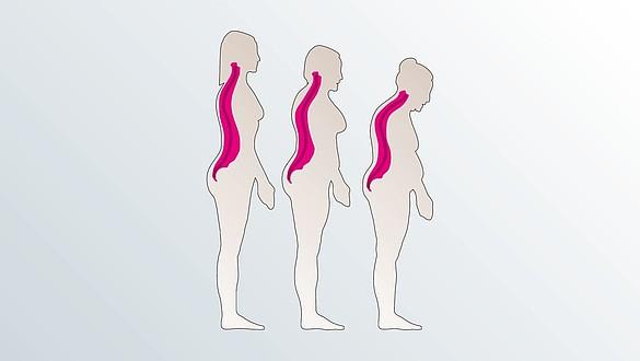 Osteoporosis - Osteoporosis