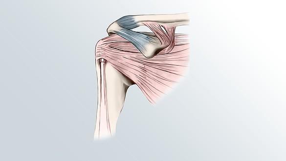 Rigidez del hombro