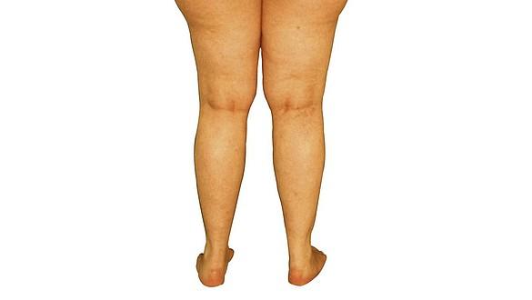 cremas hormonales para engordar las piernas