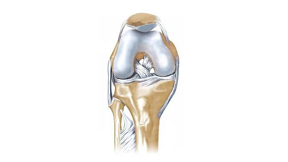Lesiones de ligamentos cruzados