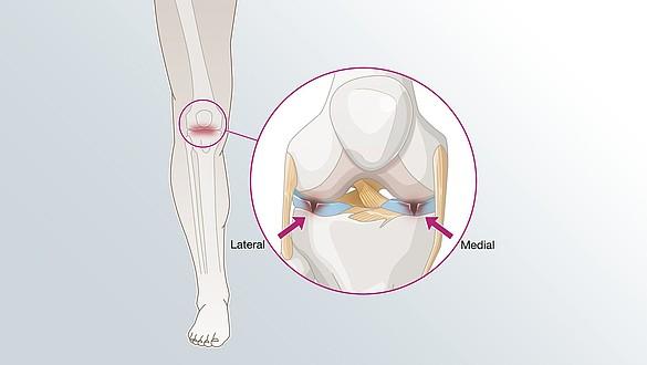 Lesión de menisco - Lesión de menisco